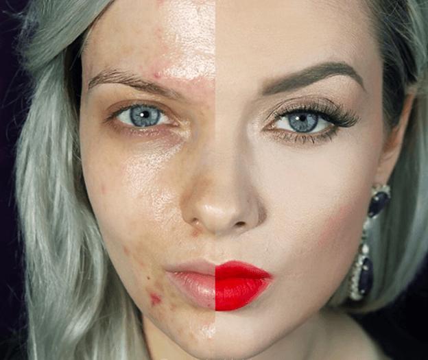 bloguera con acné se quita el maquillaje