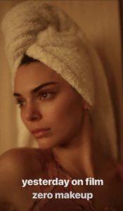 Kendall Jenner habla de su acné